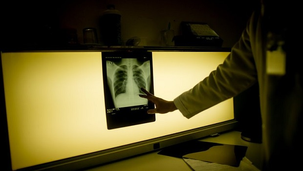 Fast, Inexpensive Tuberculosis Test May be Possible With Nanotechnology