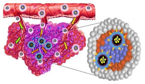 New nanotherapy offers hope in treating drug-resistant renal cell carcinoma